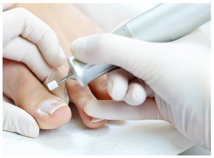 Chiropodist treating a foot