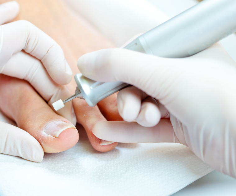 Chiropodist seeing to someones feet